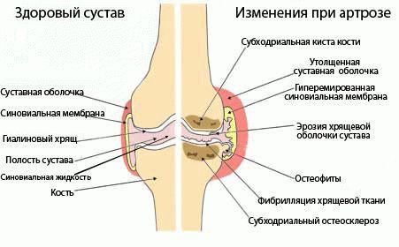 лечение артрозов киев