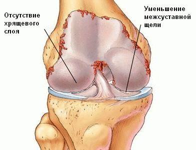 лечение артроза ударно-волновой терапией