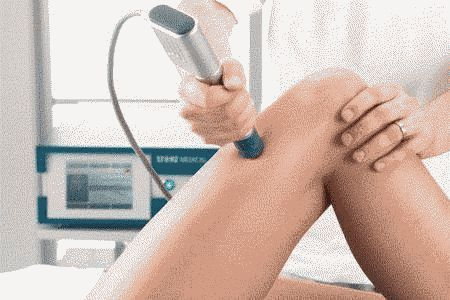 Treatment of fractures of the shock-wave therapy