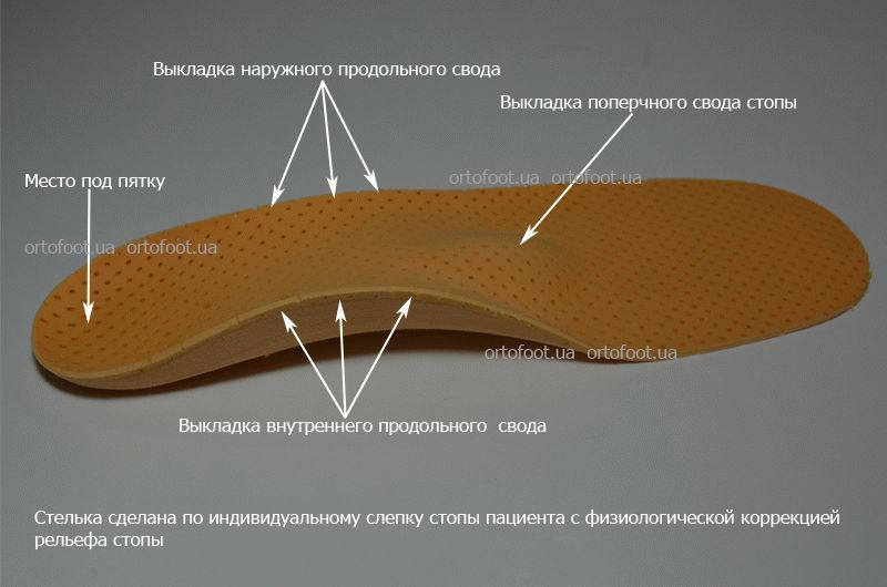Individual orthopedic insole from a cast