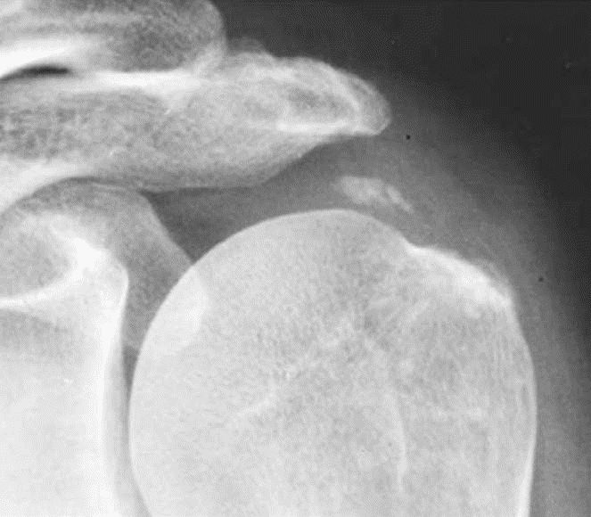 лечение артрита артроза бурсита в киеве