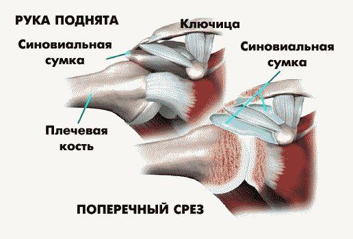 Изображение - Ударно волновая терапия при капсулите плечевого сустава ne