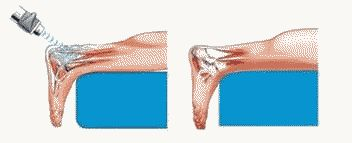 Treatment of heel spurs and heel pain Kiev