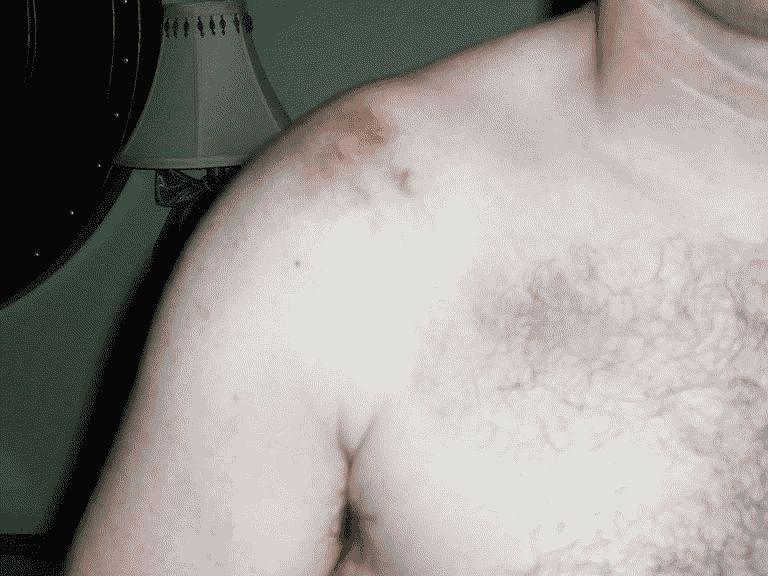Острые боли в плече