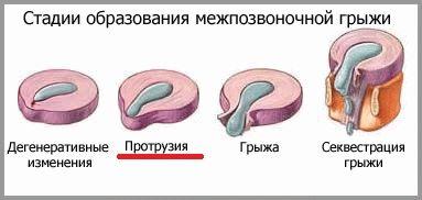 Cтадии остеохондроза