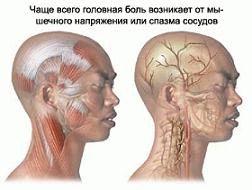 Причини і симптоми шийної мігрені