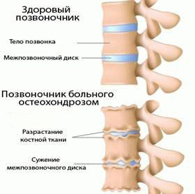 Лечение остеохондроза ударно-волновой терапией в клинике Аватаж