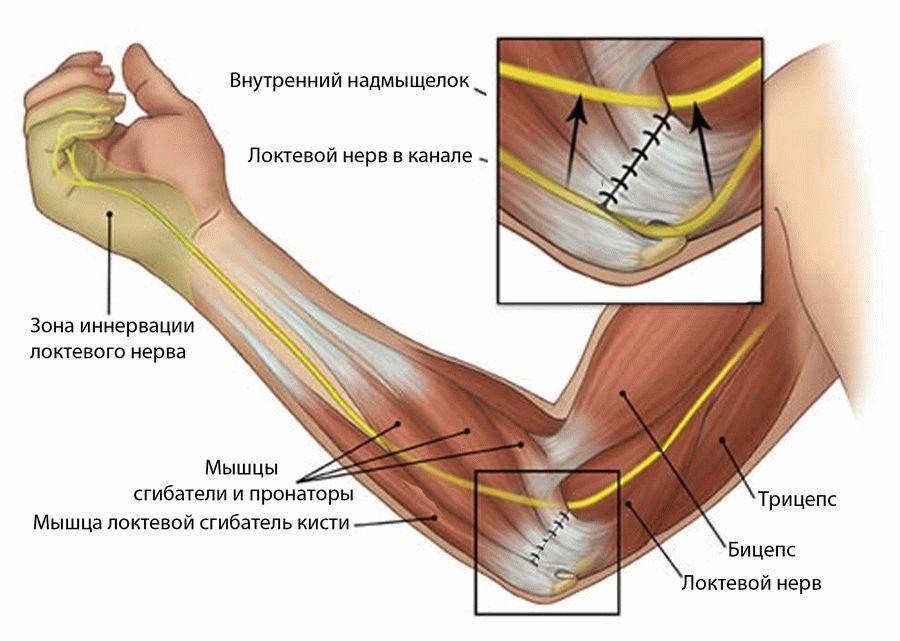 Туннельный синдром локтевого сустава