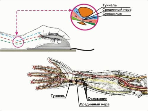 Туннельный синдром или туннельная невропатия