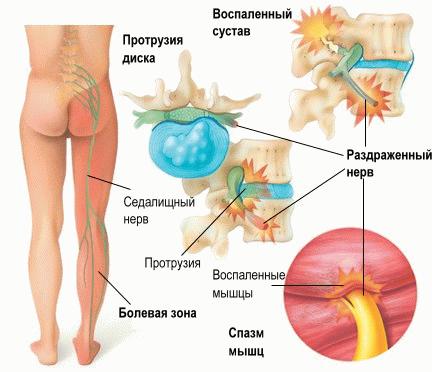 симптомы люмбалгии