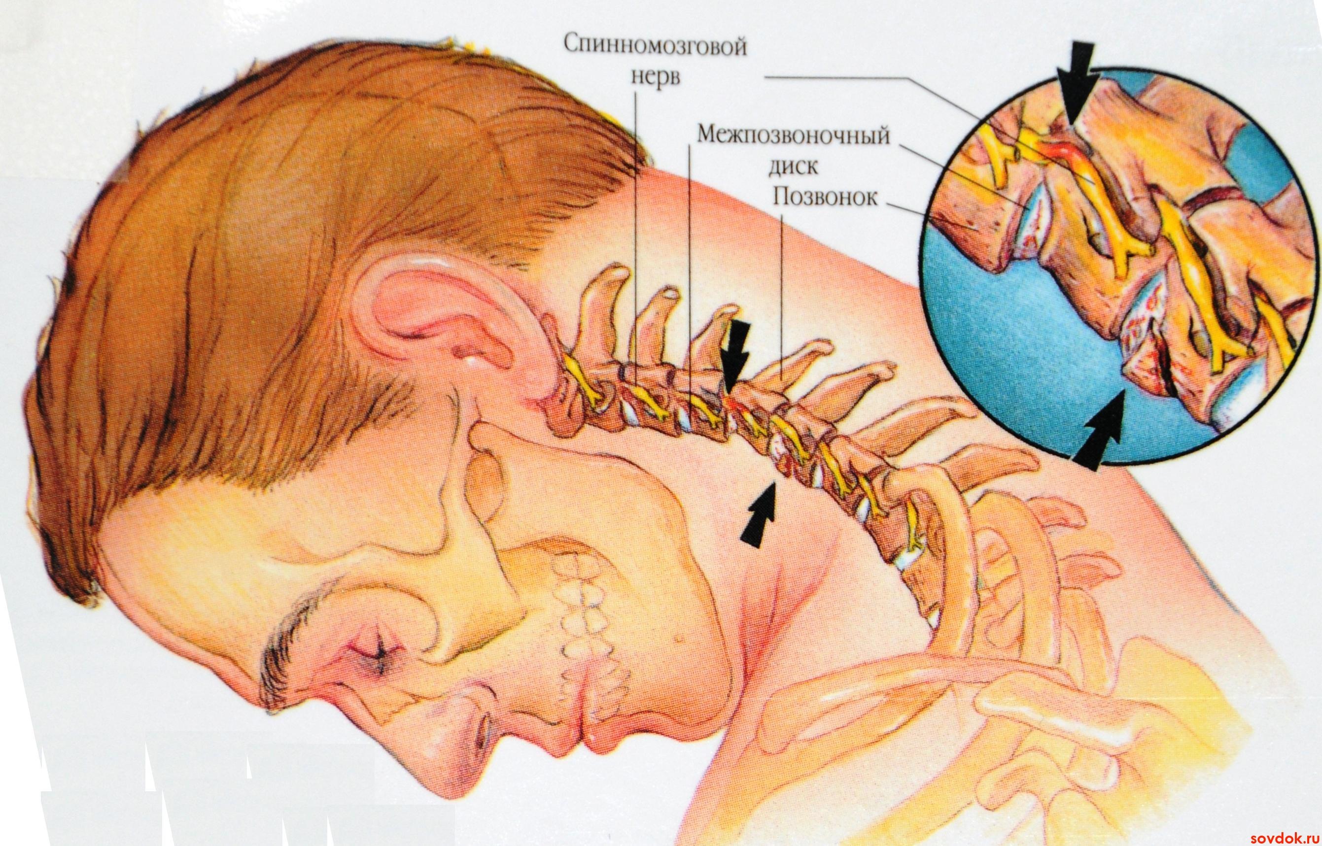 лечение боли в шее цервикалгии