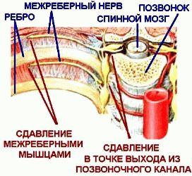 Торакалгия боль в груди