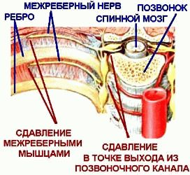 Лікування торакалгії