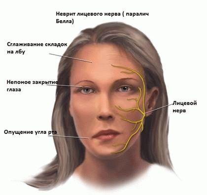 Невропатія лицьового нерва