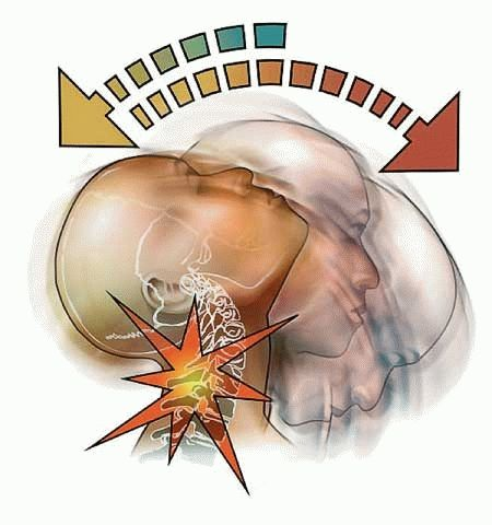 травмы шеи удар по типу хлыста