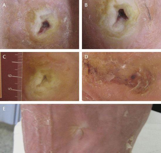 Лечение диабетической стопы ударно-волновой терапией