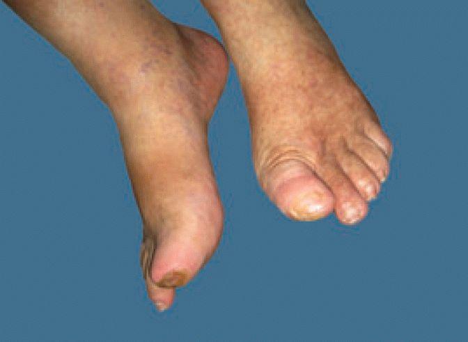 Case study: shock waves treatment of diabetic gangrene