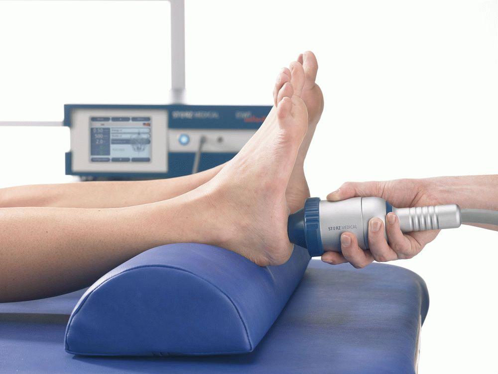 лечение диабетической стопы ударно волновой терапией