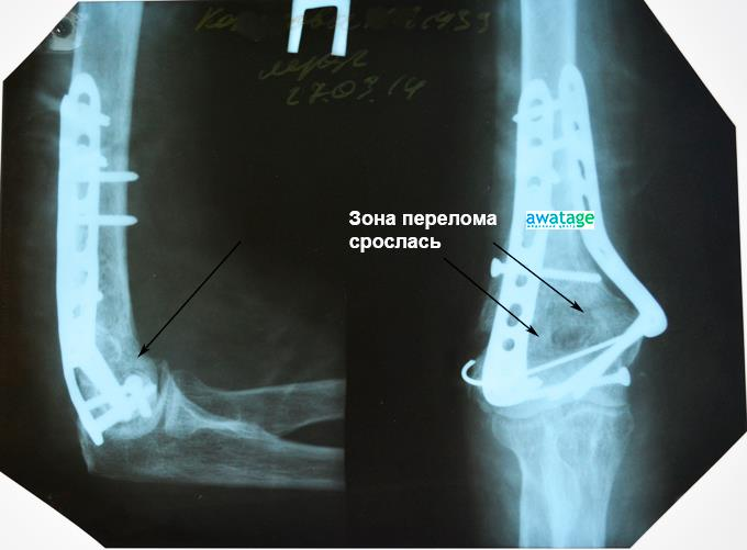 Лікування переломів ударно-хвильовою терапією в медцентрі Аватаж