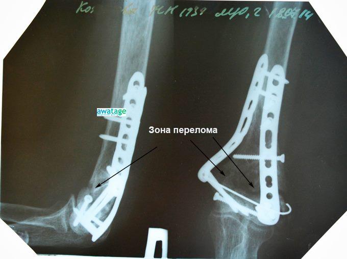 Лечение замедленной консолидации переломов ударно-волновой терапией