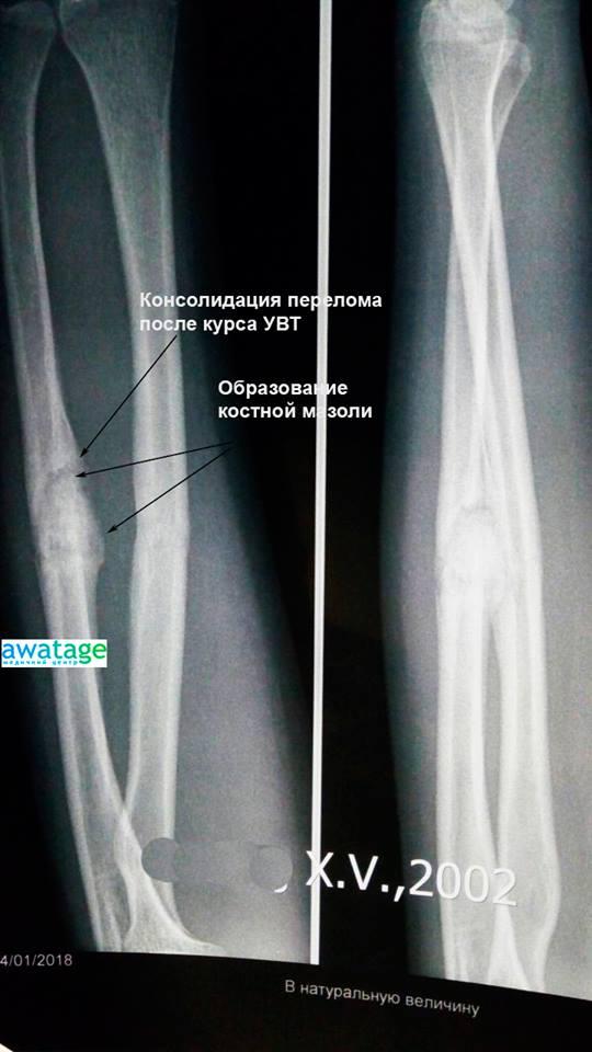 Лікування переломів ударно-хвильовою терапією