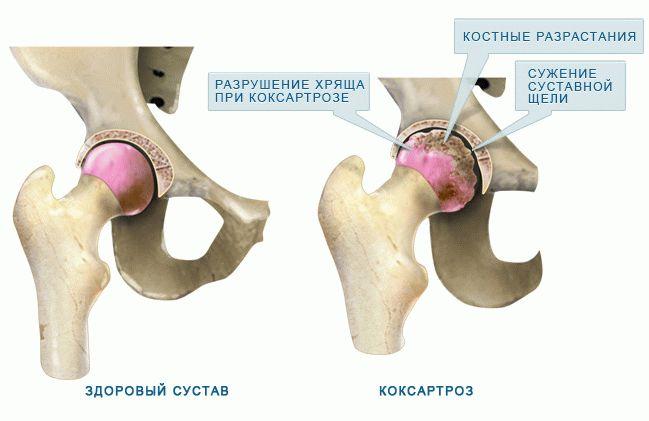 Ударно волновая терапия при коксартрозе тазобедренного сустава суставы еу