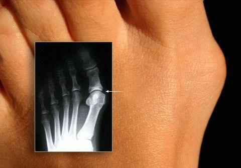 лечение косточек на ноге киев