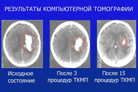 Микрополяризация мозга в Киеве