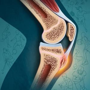 Лечение болезни Шляттера ударно-волновой терапией