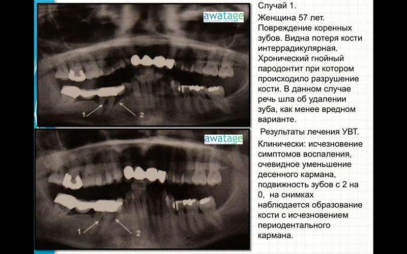 ударно-волновая-терапия-в-стоматологии-в-медцентре-аватаж